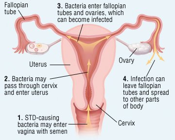 Illustration of Can Vaginal Discharge Cause Pelvic Inflammatory Disease?