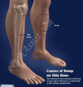 Illustration of Causes Of Lumps In The Shin?