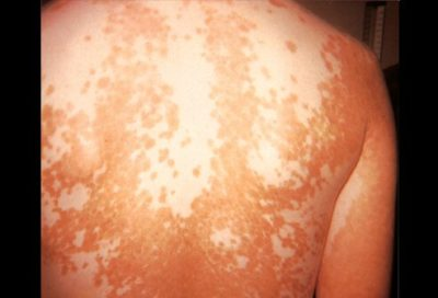 Illustration of Causes And Treatment Of Patches On The Skin Of The Thighs To The Feet And Blackish Rashes In Children Aged 8 Years?