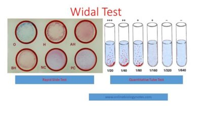 Illustration of The Fever Goes Up And Down But The Negative Widal Test Results?
