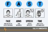 Can I Order The Symptoms Of A Mild Stroke?