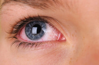 Illustration of How To Deal With Red Eyes, There Are Spots, Watery And Green Liquid Comes Out?