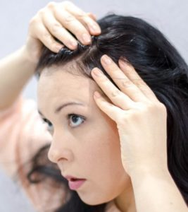 Illustration of Is Chicken Pox On The Scalp Can Disappear By Itself?