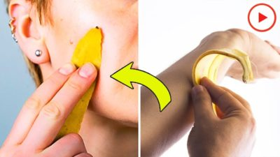 Illustration of The Use Of Banana Peels As A Face Mask?