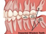 Is It Possible To Pull Out Molars When Wisdom Teeth Grow?