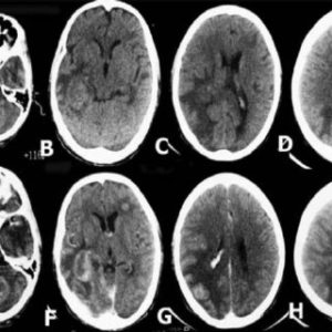 Illustration of Explanation Of CT Results Of Multiple Head Lesions?
