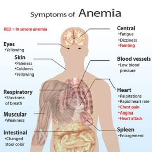 Illustration of Signs And Symptoms Of Anemia And Low Blood Pressure?