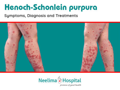 Illustration of Can Henoch Schonlein Purpura (HSP) Be Cured?