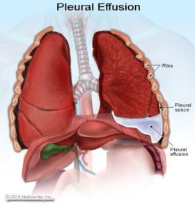Illustration of Is Exudate Pleural Effusion Contagious And Curable?