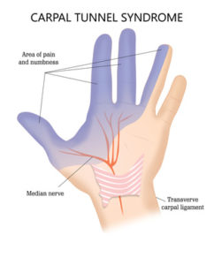 Illustration of Pain In The Wrist And Fingers After An Accident?
