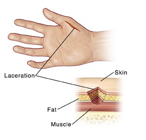 Illustration of The Thumb Becomes Sensitive After The Wound?