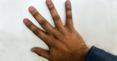 Illustration of How To Get Rid Of Dark Colors On The Fingers And Toes?