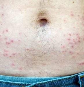 Illustration of The Cause Of Small Pimples Arise Around The Lower Abdomen And Lower Right Abdominal Pain?