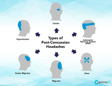 Illustration of Causes And Solutions To The Right Migraine After An Accident?