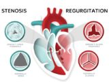 Treatment Of Heart Valve Disorders Accompanied By Heart Pain And Palpitations?