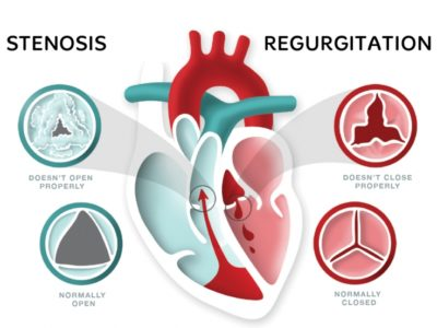 Illustration of Treatment Of Heart Valve Disorders Accompanied By Heart Pain And Palpitations?