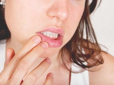 Illustration of The Cause Of The Corner Of The Mouth Itchy After A Spicy Meal?