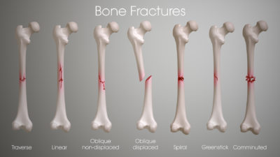 Illustration of Treatment Of Fractures?