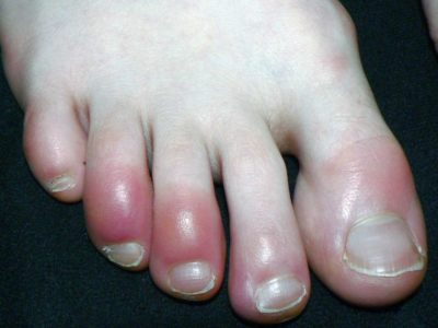 Illustration of Causes And Ways To Deal With Redness Of The Feet And Hands Accompanied By Itching?