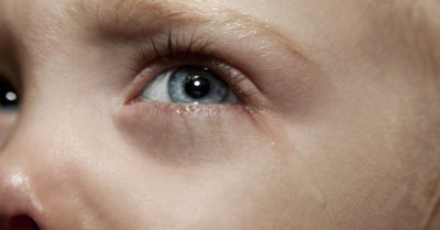 Illustration of Treatment Of Red And Watery Eyes In Children Aged 7 Years?