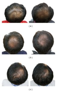 Illustration of Finasteride Treatment To Overcome Extreme Baldness?