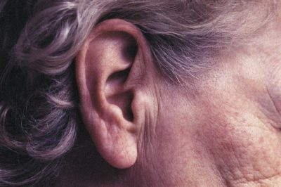 Illustration of Impact Of Accumulation Of Dirt In The Entire Ear Hole?