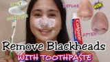 Remove Facial Blackheads With A Toothbrush?
