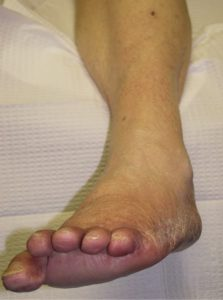 Illustration of Management Of Neuropathy In The Legs That Hurt Until It Is Difficult To Walk?