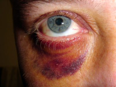 Illustration of Eye Veins Have Leakage After An Accident?