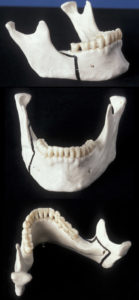 Illustration of Handling Of Tenuous Teeth In Front And Side?