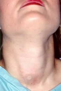 Illustration of A Lump In The Neck Returned After Biopsy?