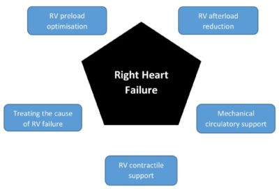 Illustration of Treatment Of Right Heart Rhythm Disorders?