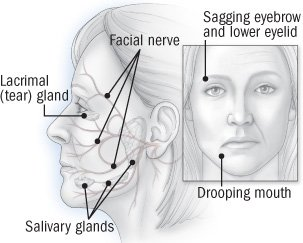 Illustration of How To Deal With Bell's Palsy?