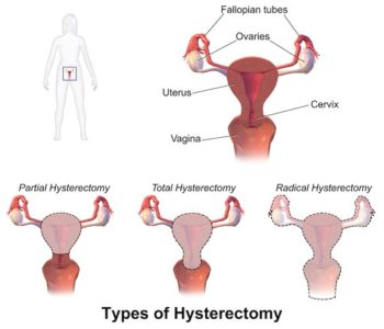 Illustration of Causes Of Pain After Surgical Removal Of The Uterus And Myoma?