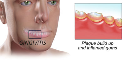 Illustration of Causes Swollen Gums To The Cheeks?
