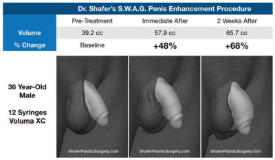 Illustration of Management Of Swelling In The Penis Due To Injection?