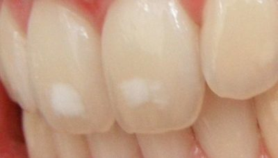 Illustration of Toothache Does Not Heal Accompanied By White Patches On The Gums?