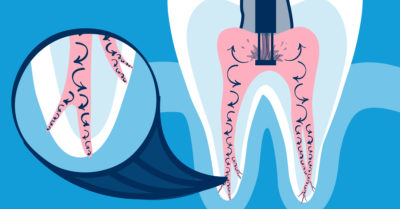 Illustration of The Mechanism Of Treatment Of The Root Canal Teeth?
