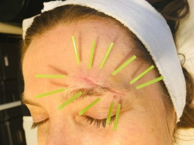 Illustration of Treatment Of Stitches On The Face?