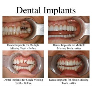 Illustration of Safety Mounting Of Dental Pegs From Titanium?