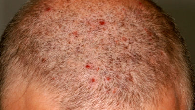 Illustration of Itching And Small Red Bumps Appear On The Scalp?