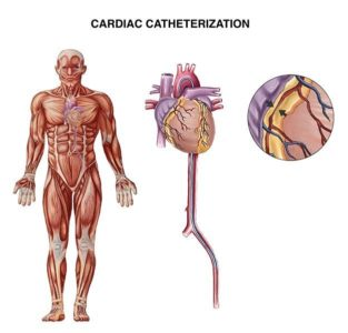 Illustration of Side Effects That Arise After CAG (cardiac Catheterization)?