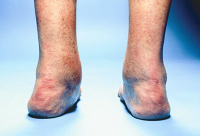 Illustration of Causes And Ways To Deal With The Ankle Until The Calf Hurts?