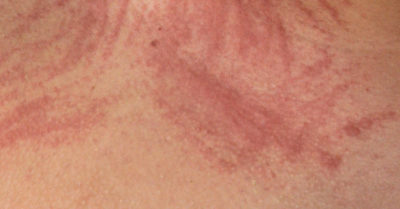 Illustration of The Right Allergy Medicine To Deal With Scratch Marks?