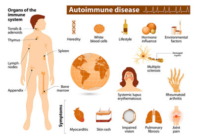 Illustration of Causes And Treatment Of Autoimmune Diseases?