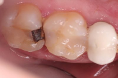 Illustration of Handling Of Cavities Remaining Tooth Roots?