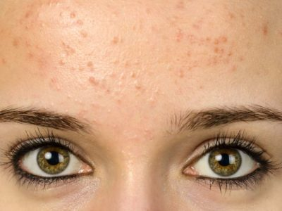 Illustration of How To Deal With The Appearance Of Acne Due To Late Menstruation?