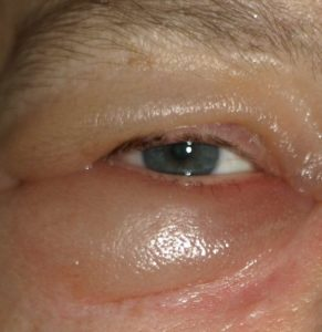 Illustration of Factors That Cause Swelling Of The Eyelids?