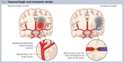 Illustration of The Relationship Between Headaches And Stroke?