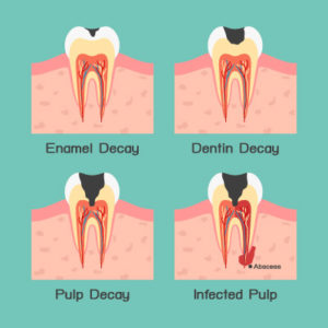 Illustration of Handling Of Toothache Due To Cavities?